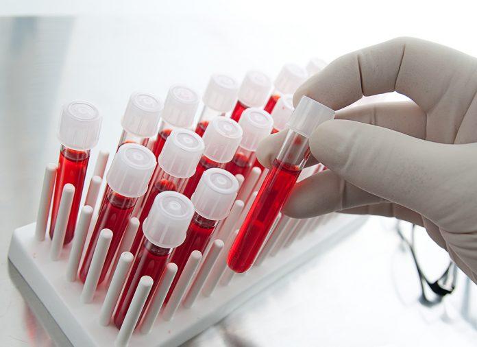 Covid, primo studio su potenziale cura con anticorpo. Ricavato dal sangue di uno dei primi guariti negli Usa